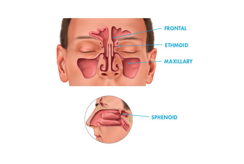 sinusitis-img1