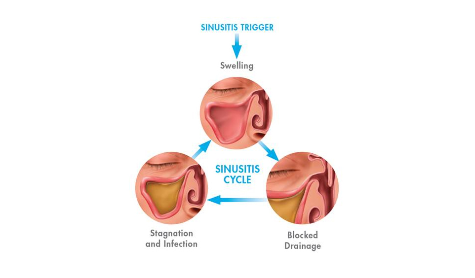 sinusitis-img2