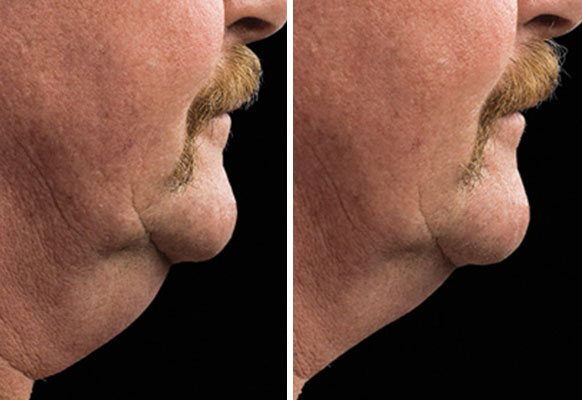 male-chin-before-after-thumb-opt